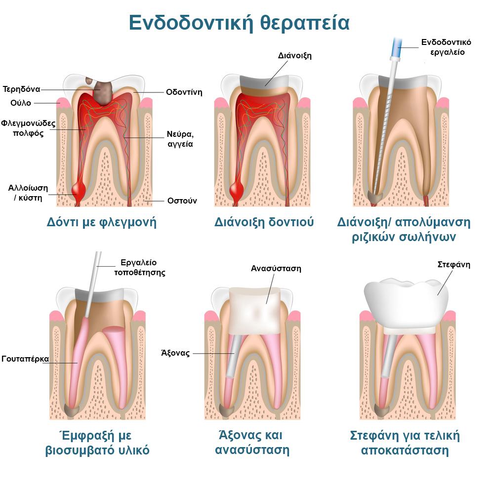 Endodontic_pic_greek
